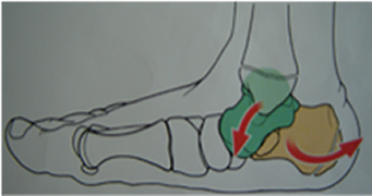 pronazione del piede